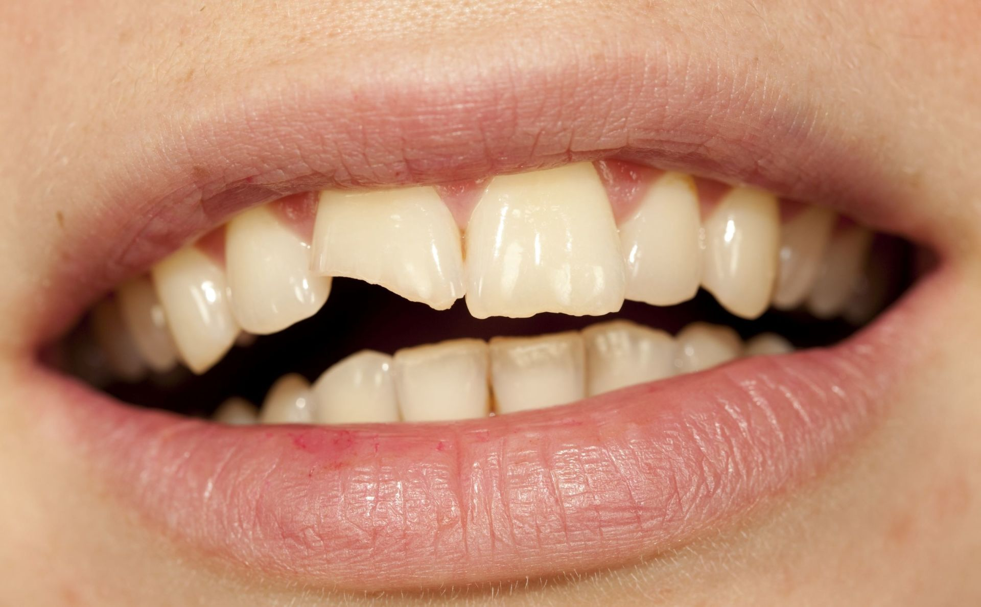 A Broken Front Tooth and the Psychology of the Smile